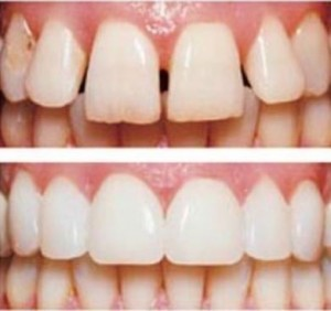 Cosmetic-Dentist-Birmingham-Michigan-1
