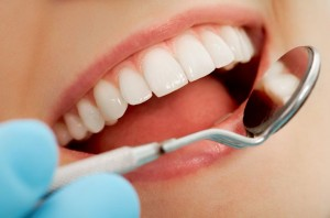 Teeth-Whitening-Service-Birmingham-Michigan-1